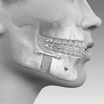 Foto de la directora de la clínica dental Boca en Marbella, Doctora Ortodoncista Irina Manea